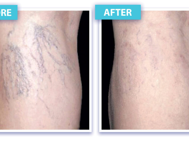 before and after vein removal